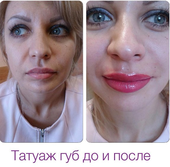 Когда можно кушать после увеличения губ
