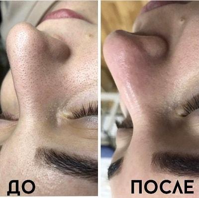 пилинг до и после фото